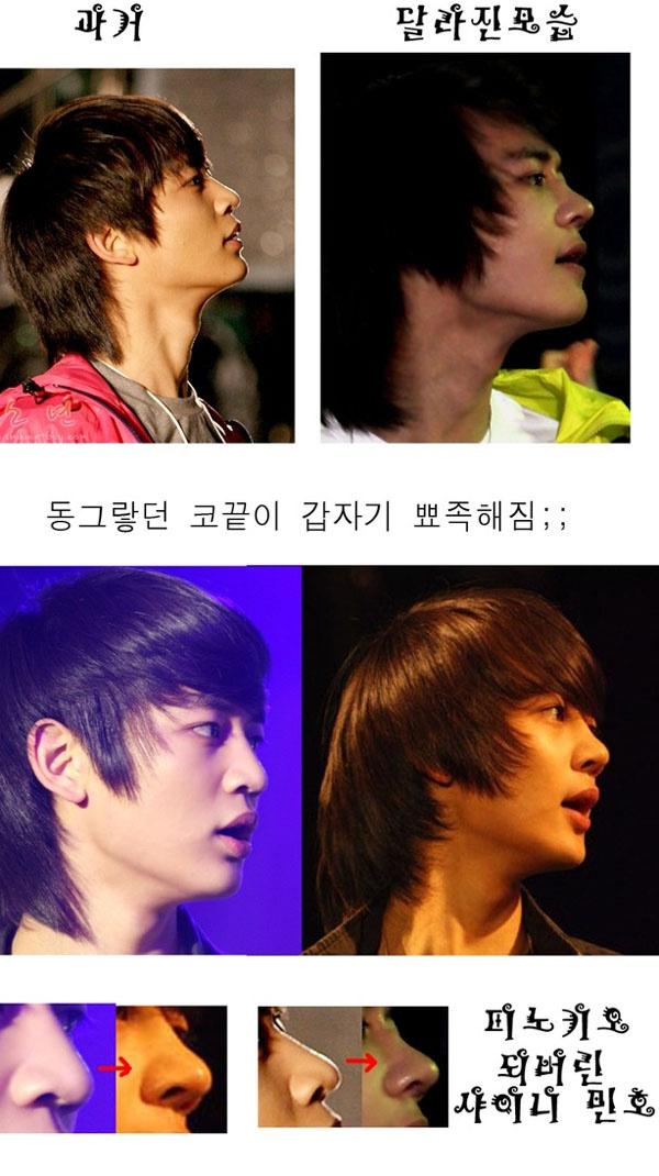 بعض المشهورين في كوريا قبل و بعد عملية التجميل 20090430_minhonose.j
